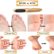 foot care callus remover